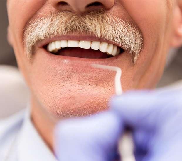 Mamaroneck Adjusting to New Dentures