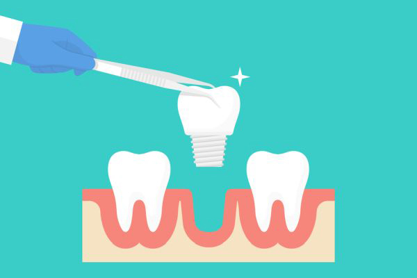 Dental Implants: A Solution For Missing Teeth