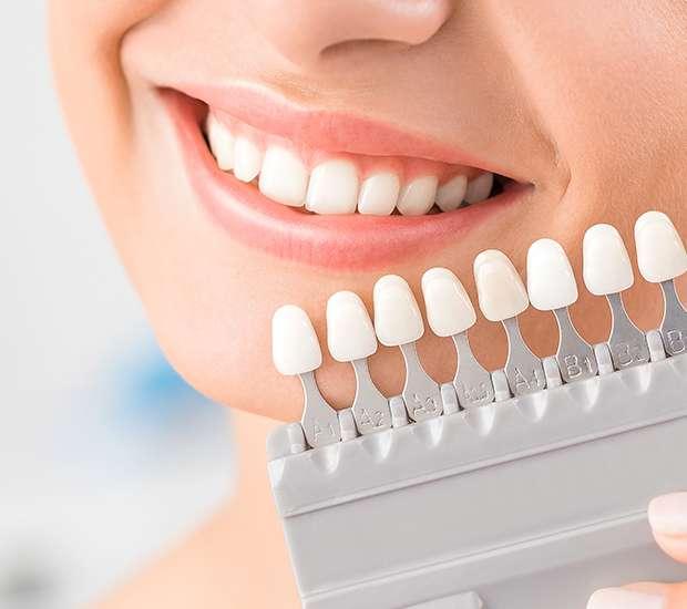Mamaroneck Dental Veneers and Dental Laminates